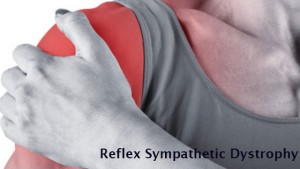 What is Reflex Sympathetic Dystrophy
